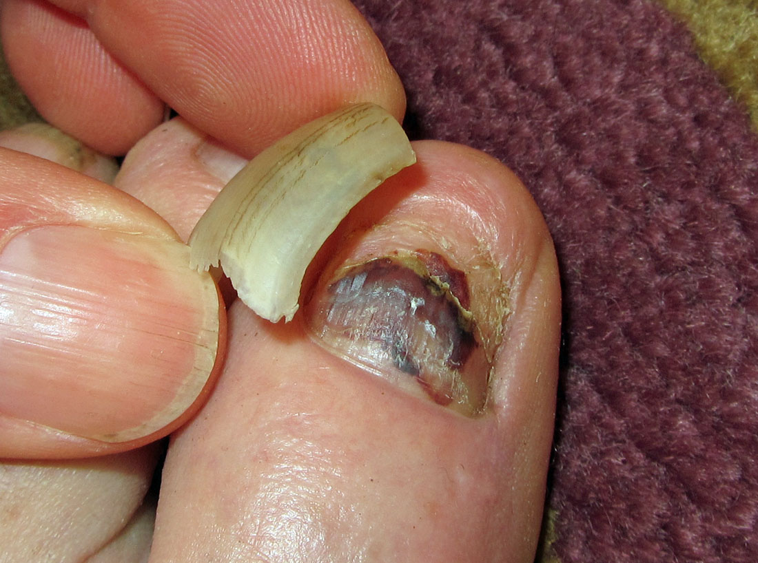 Bad toenail (6)