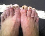 2013-bmm-feet