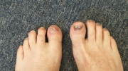 Disgusting toes