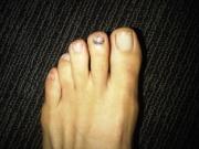 toe-1