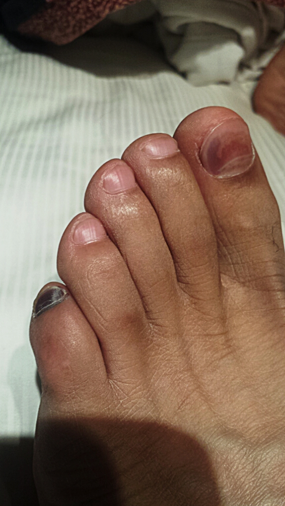 Black Toenail Hall Of Fame