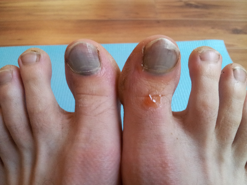 California Beach Feet - A World Famous Gallery of Beautiful Bare.
