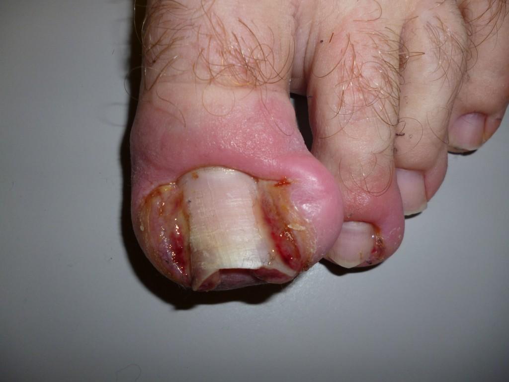 ultramarathon black toenail