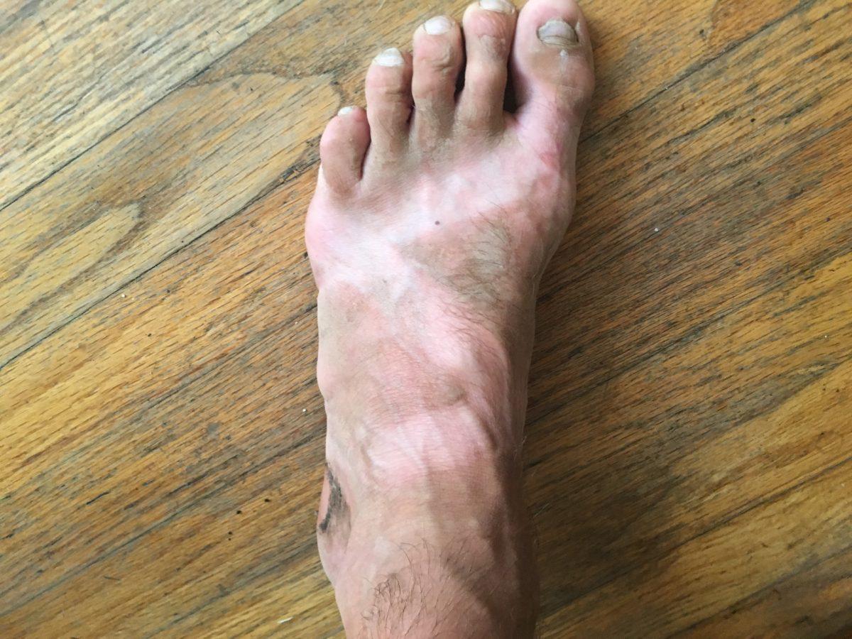 ultramarathon sandals