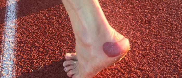 blister ultramarathon